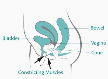 How to insert the Neen Aquaflex Cones